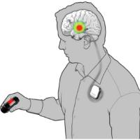 @epilepsyecosystem